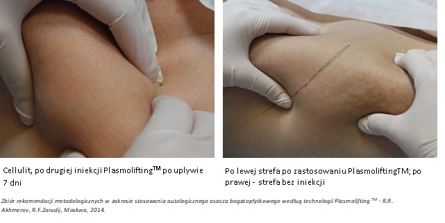 Plasmolifting cellulit